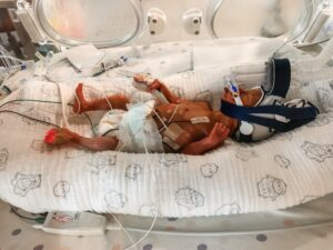 Baby Annie being looked after in RNSH NICU.